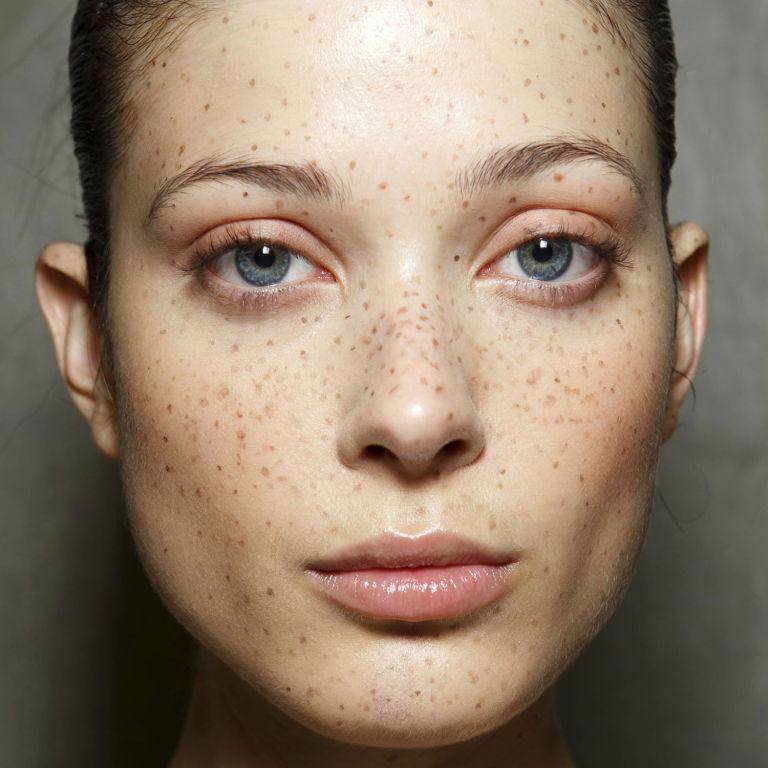 5499c0f8cd51b_-_hbz-lfw-ss2015-beauty-preen-freckles-promo